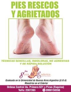 pies resecos